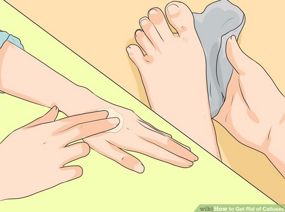 Tips To Get Rid of Calluses From the Hands